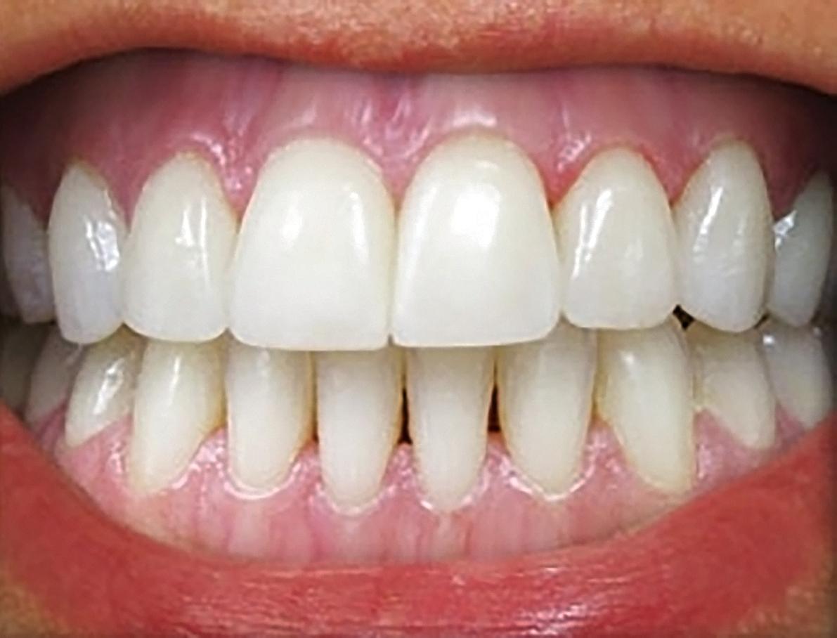 отбеливание зубов подросткам